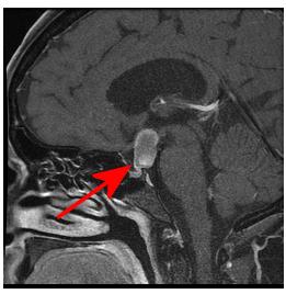 sagittal section showing craniopharyngioma