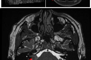 Tumor in the CPA