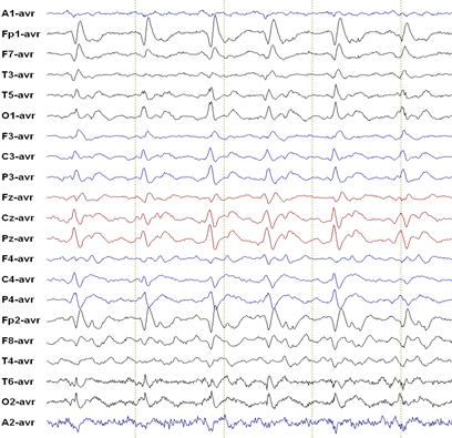 Characteristic 1 Hz spike and wave EEG of CJD
