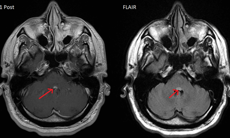 Facial colliculus MRI