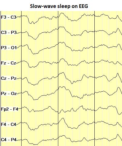 Slow-wave sleep on EEG
