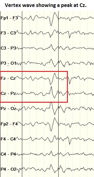 Vertex wave on bipolar montage EEG