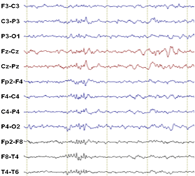 Benign EEG pattern 14-and-6 Hz positive bursts