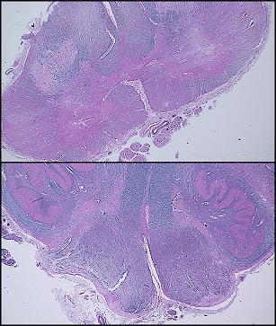 ALS spinal cord pathology