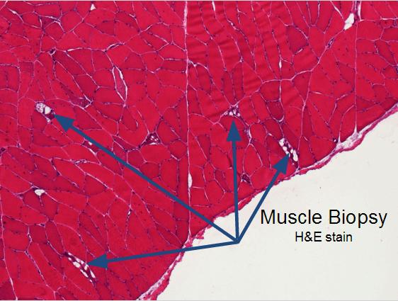 Vacuolar myopathy