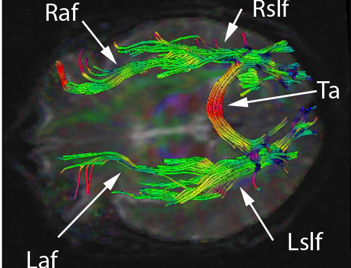 Cerebral white matter tracts by diffusion tensor imaging. Licensed under Creative Commons Attribution-Share Alike 3.0 via Wikimedia Commons