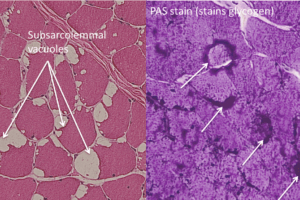 McArdle disease, H&E and PAS stain