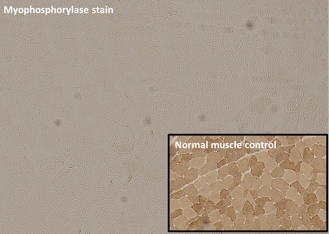 McArdle Disease myophosphorylase stain