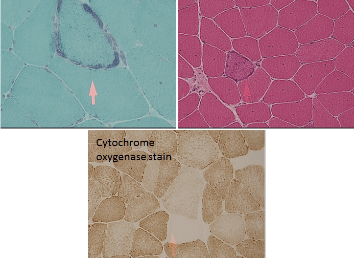 Mitochondrial myopathy seen on H&E stain, trichrome stain, CO stain