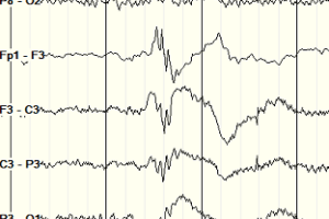 polyspike and wave EEG in JME