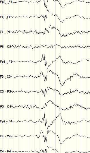 polyspike and wave EEG in JME