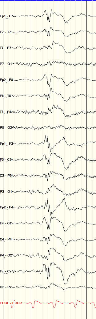 Juvenile Myoclonic Epilepsy: polyspike and wave EEG